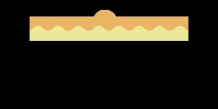アクロコルドン