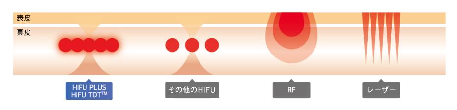 HIFU-PLUS_照射比較