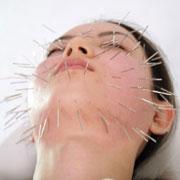 美容鍼の刺入角度