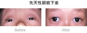 先天性眼瞼下垂症例03