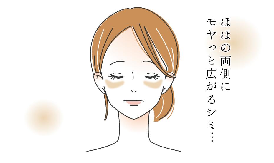 肝斑_img