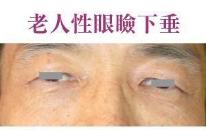 老人性眼瞼下垂
