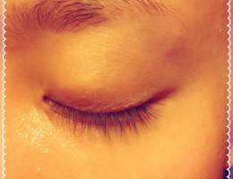 瞼のことならグランクリニック