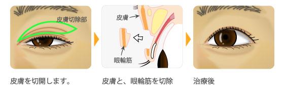 上まぶた余剰組織切除術