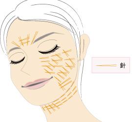皮膚・皮下組織内に安全な吸収糸を張り巡らせる