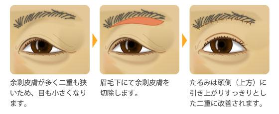 眉毛下余剰組織切除法