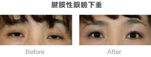 腱膜性眼瞼下垂_症例