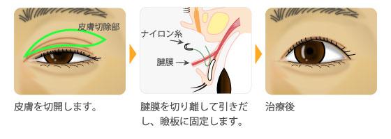 挙筋短縮術
