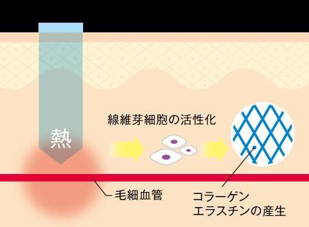 Vビームレーザー_照射図