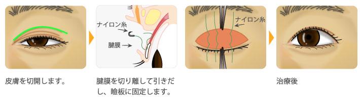 腱膜性眼瞼下垂の治療(腱膜手術)