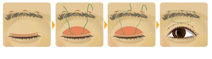 筋膜(または腱)移植による吊り上げ術