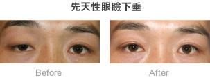 先天性眼瞼下垂症例02