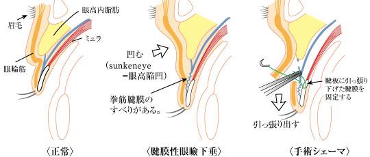 眼瞼挙筋短縮術