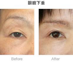 眼瞼下垂_症例